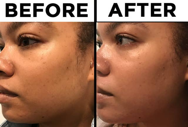 We Tried The Ordinary Skincare Line The Internet Is Talking About And Here S How It Went