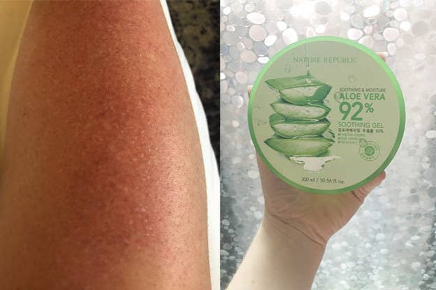 This Is How You Actually Heal A Sunburn