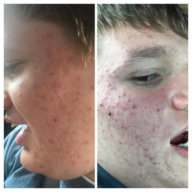 This Teen Turned To The Internet For Help With Her Autistic Brother S Acne And The Response Was Incredible