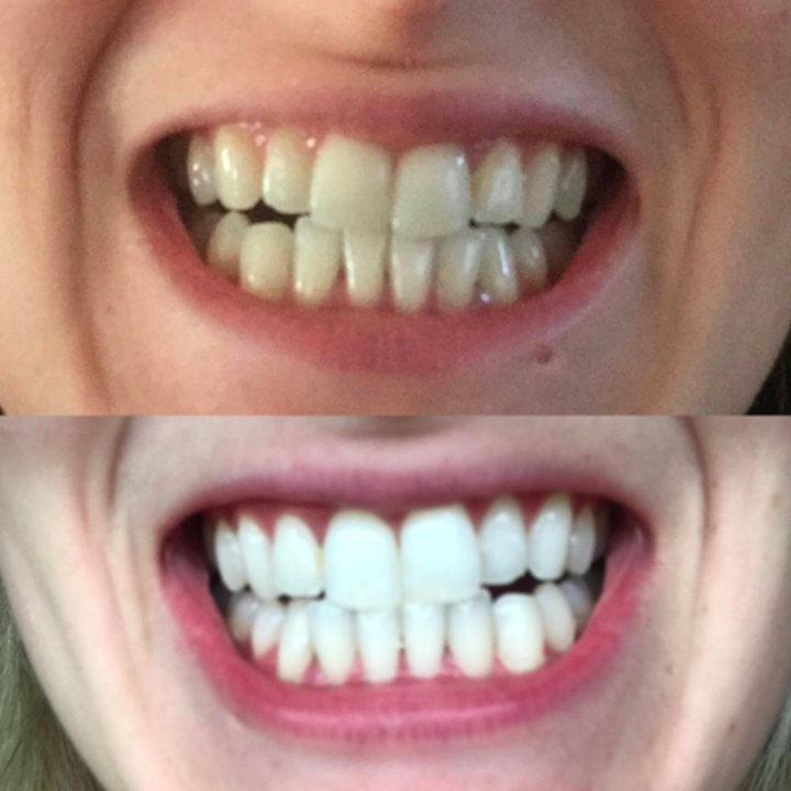 Drop Everything Because Crest Whitestrips Are Luckily On Sale For