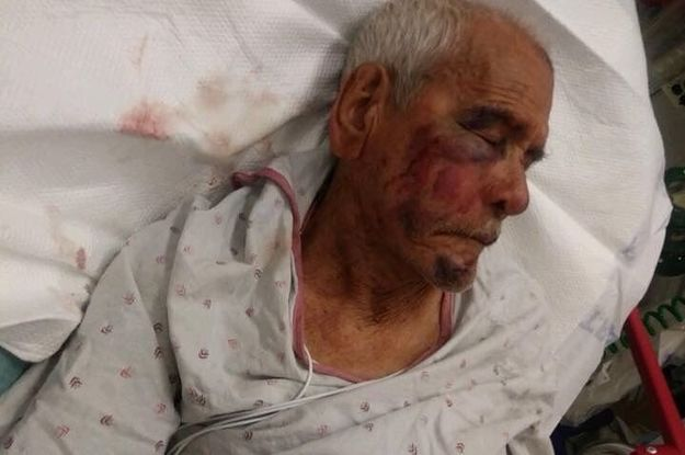A 92-Year-Old Grandpa Was Beaten With A Brick And Told To