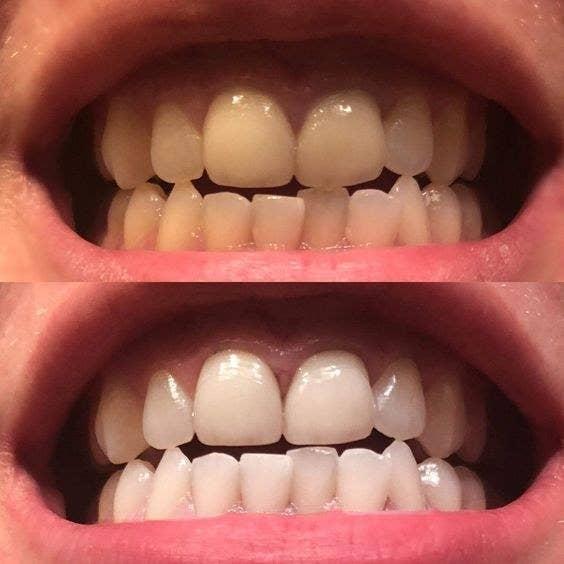 Tarte Pearly Girl Vegan Teeth Whitening Pen Uk Teethwalls
