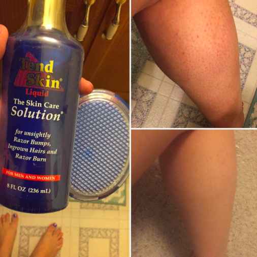 A reviewer's collage of photos. On the left, a bottle of the product and an exfoliating brush. On the top right, their leg with lots of razor bumps. On the bottom right, the same leg looking smooth