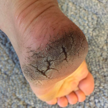 A reviewer's heel looking dirty and deeply cracked