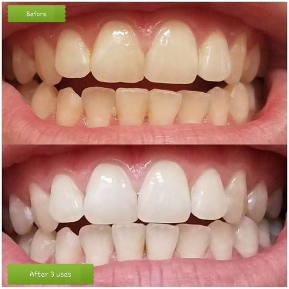 """Promising review: """"I've been using this toothpaste for three days and I'm beyond happy with it! I'll never use regular toothpaste again if I don't have to. My teeth feel cleaner than they ever have. Usually my teeth feel gross at a certain point in the day and since using this product that hasn't happened. I can feel that extra tartar and junk are no longer hanging on my teeth. I can also see my teeth are whitening up. Three days of this product and it's already a game changer!"""" —Melissa"""