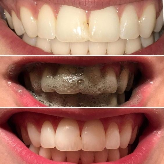 """Promising review: """"This is absolutely amazing. I'm a daily tea drinker and after one use my teeth were whiter than any whitening strip kit I have used. Just ONE brushing. Plus, the white lasts. I use it about once a week to keep my teeth whiter. When I run out I will purchase again."""" —Consumer"""