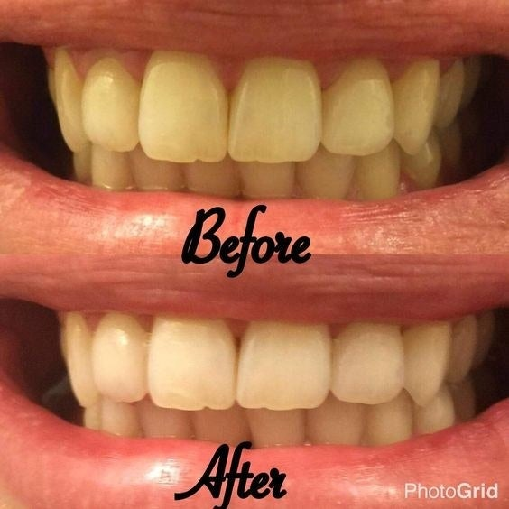 """Promising review: """" I wanted to wait to write this review until after a visit to the dentist. I did that last week. The hygienist remarked how clean my teeth were (despite it being over a year since my last cleaning. Don't judge, I hate going to the dentist.). I can tell you it definitely whitens my teeth too."""" —Luckipuppi"""
