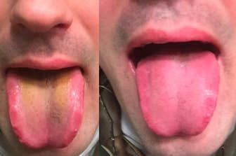 This Oral Rinse Has Helped Thousands Of People Get Rid Of Bad