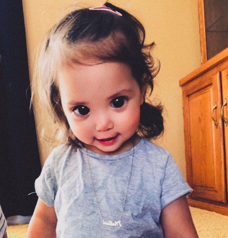 This Little Girl's Big, Beautiful Eyes Are Due To A Rare Genetic Syndrome
