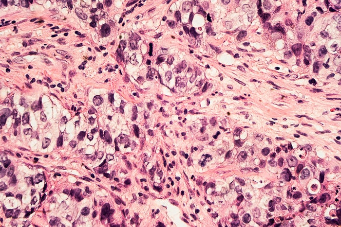 Ductal carcinoma (not from a patient in case report).