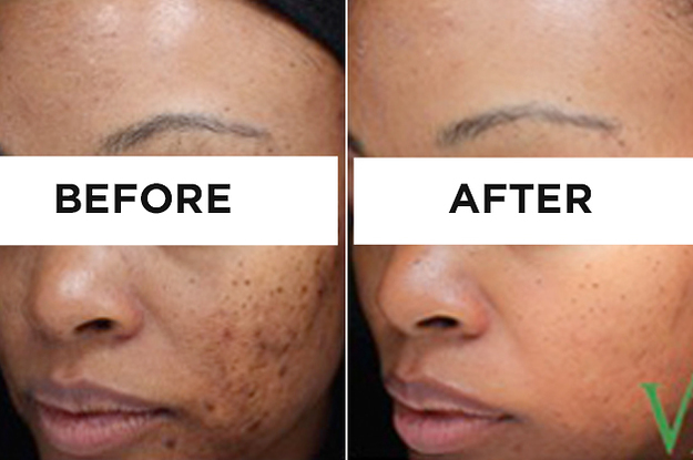 Here Are Some Life-Changing Products For Acne Scars And Dark Spots
