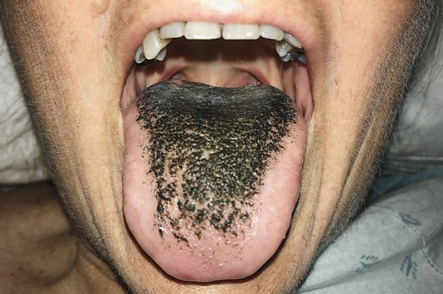 "After Taking An Antibiotic, This Woman Developed A Severe Case Of ""Black Hairy Tongue�"