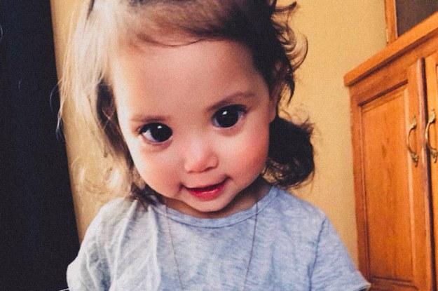 少女の大きな美しい瞳。それは珍しい遺伝的症候群のせいだった。