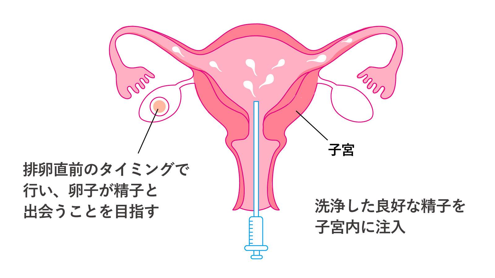 授精 妊娠 しない 人工