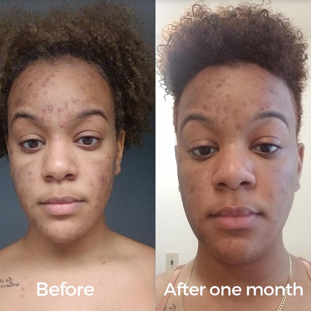 bio oil for acne scars