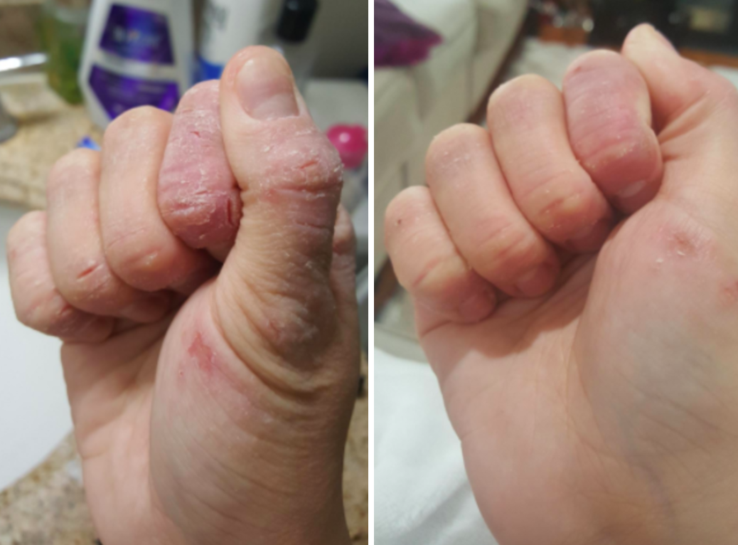 A before-and-after of a very dry hand with many cracks and small cuts compared to a much softer and smoother looking hand with only a couple small dry spots left