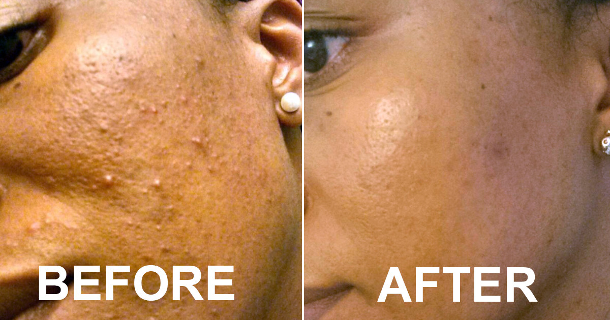 Before and after showing a reviewer's cheek acne is totally gone