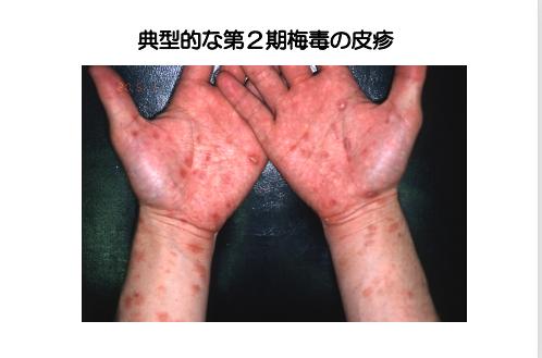 気づかぬうちに失明や脳障害も 本当は怖い梅毒、日本で急増中