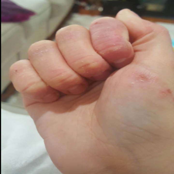 Reviewer hands after using cream