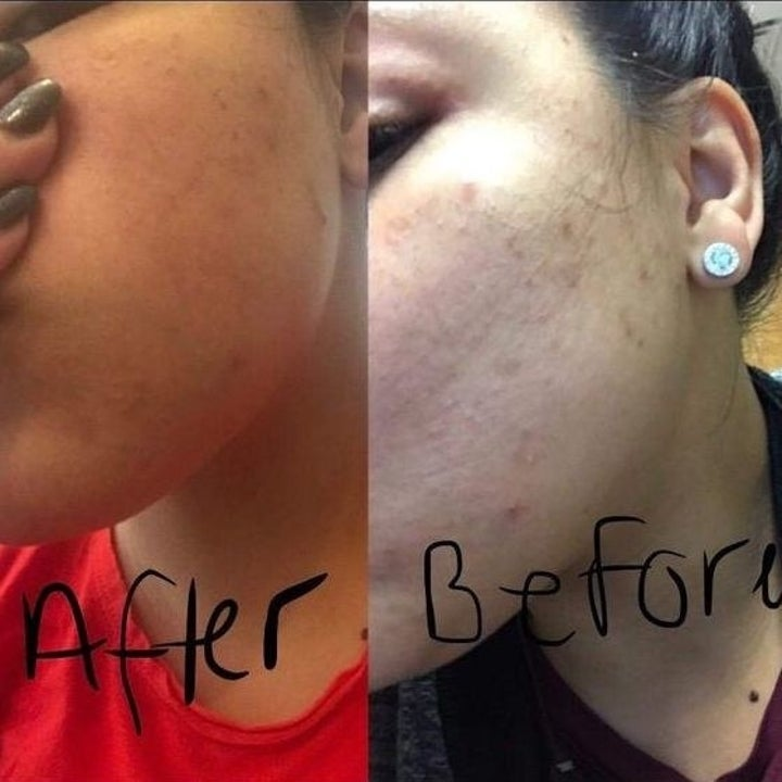 before: reviewer with red skin and bumps after: less redness and bumps