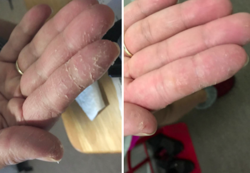 before/after of reviewer hands with less cuts and dry skin after using cream