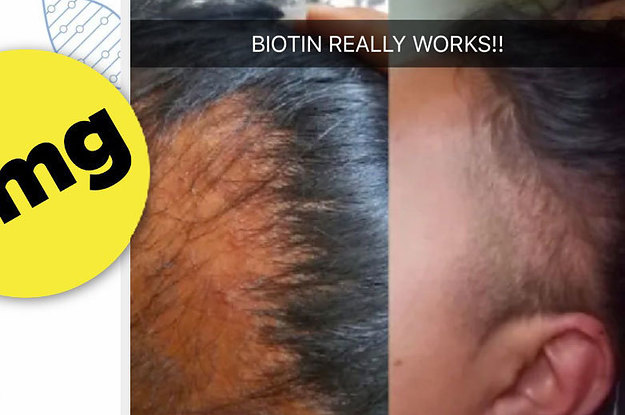 This Biotin Shampoo's Before And After Photos Will Have You Believing In Miracles