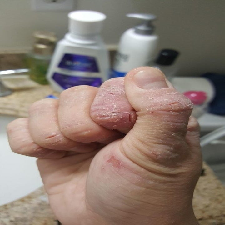 A reviewer's hand looking flaky, chapped and super dry
