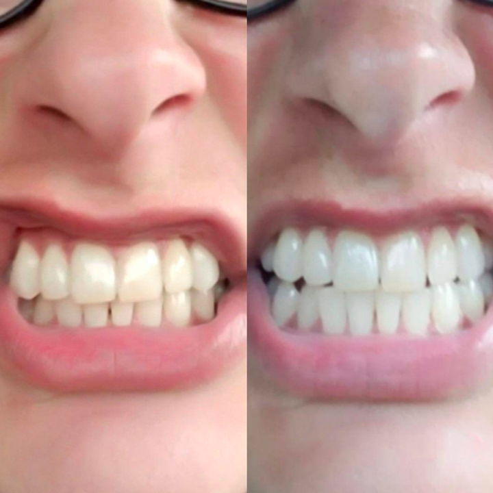before and after using toothpaste