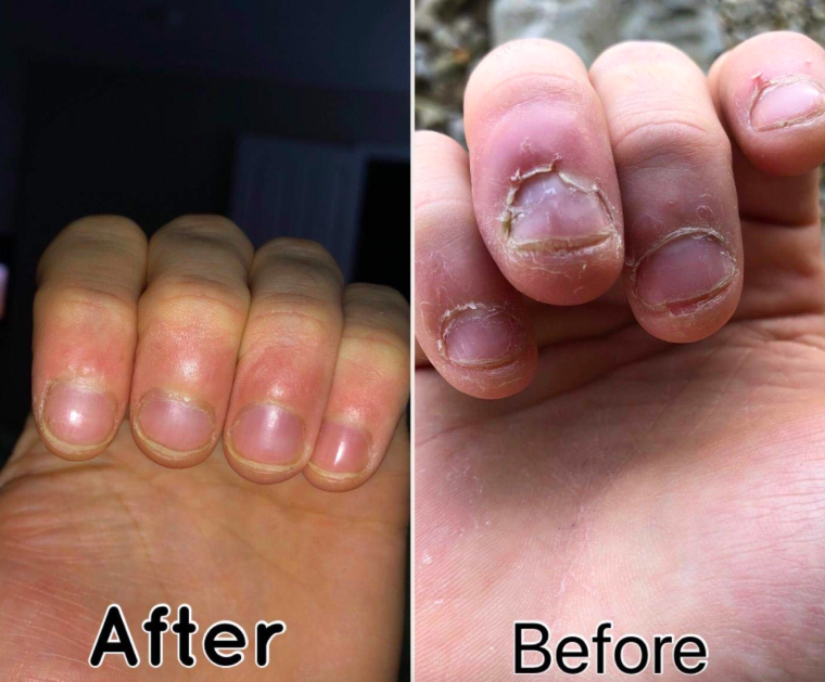 """Check out *more* amazing before and after photos in our closer look at this anti-biting nail polish. Promising review: """"Holy crap, this tastes so bad that it's amazing. I'm a chronic nail biter, and I bought this stuff maybe six months ago and never used it. Just now, after a round of serious nail biting, I thought 'ugh let's just see if this even works.' I painted all my nails with it and then took the tiniest, smallest, little taste and HOLY CRAP IT IS AWFUL! Pretty much the most foul, terrible, awful bitter taste I have ever had in my life! And it doesn't go away! It feels permanent on my tongue and it's so disgusting it immediately made me stop biting. Literally 15 minutes later I am still tasting it. I really thought I needed a miracle to stop biting my nails, and this was it!"""" —SgsgGet it from Amazon for $15.15."""