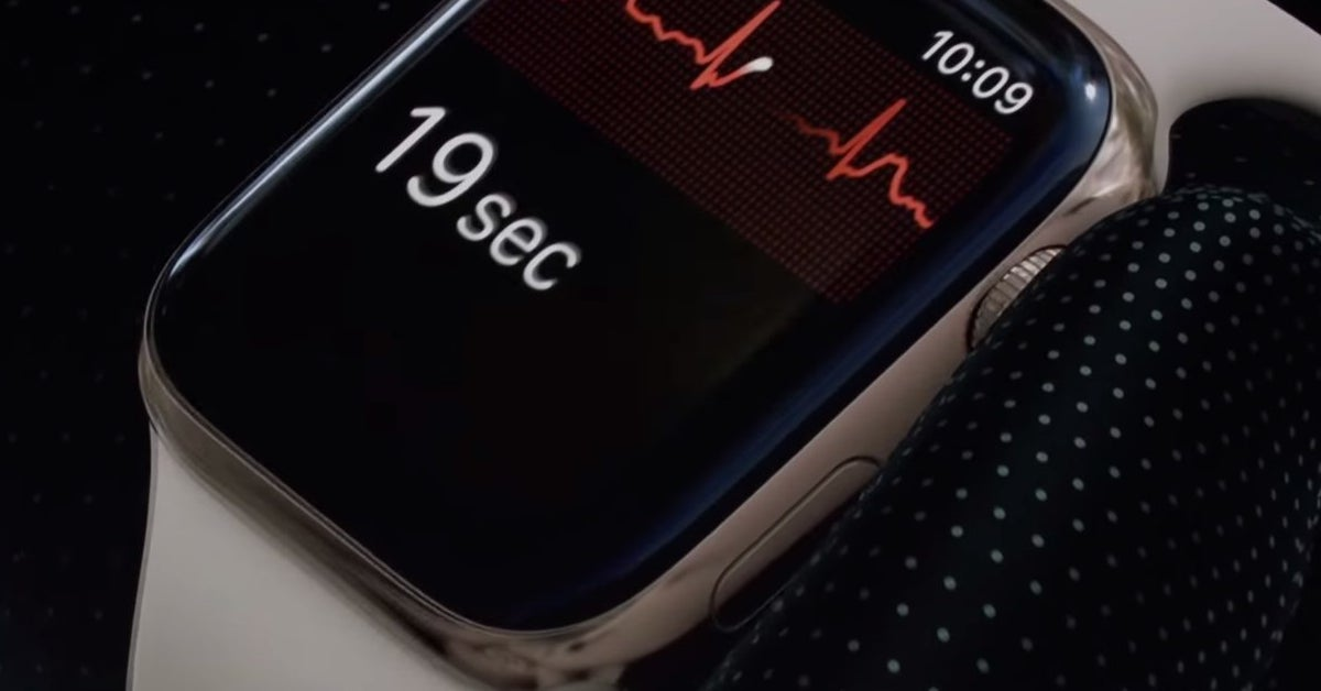 The Apple Watch's EKG Feature Is Finally Here. It's Cool. Maybe Scary Too.