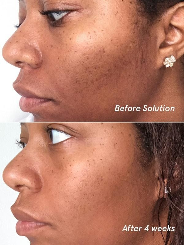 "on top labeled ""before solution"" model with some discoloration and acne scarring, on the bottom, the same model with less scarring labeled ""after 4 weeks"""