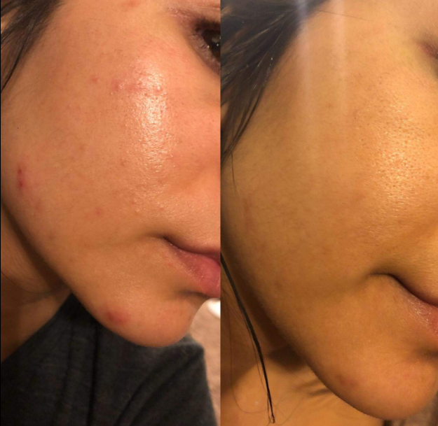 A before and after of a reviewer showing improvement in acne appearance