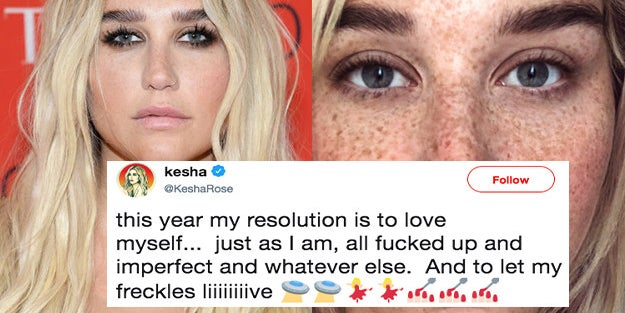 Singer Kesha Posted A Pic Without Makeup And Her Freckles Are Beautiful - Kesha-no-makeup