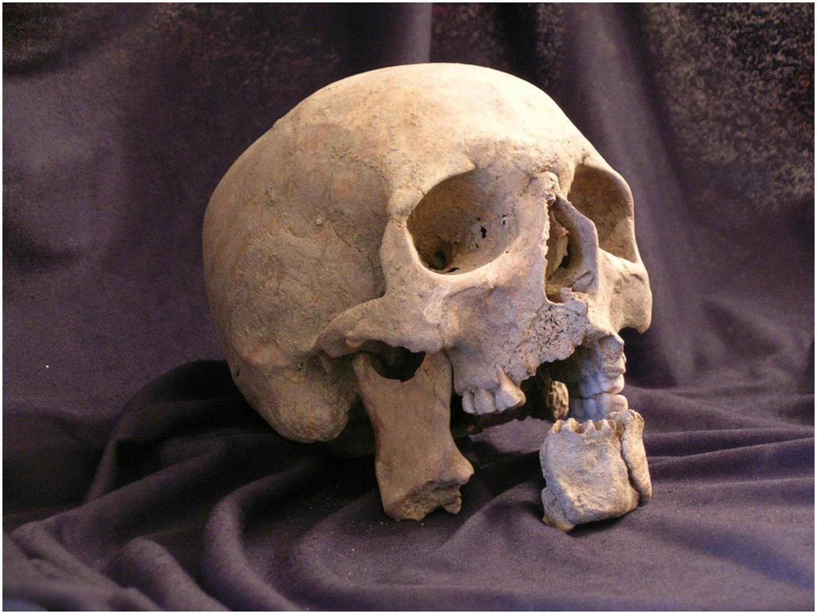 Skull of the soldier.