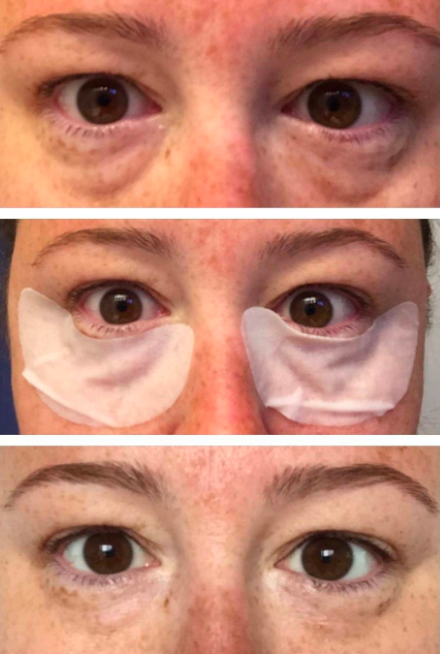 A series of customer review photos showing their tired eyes before using the eye masks, during, and then after looking refreshed