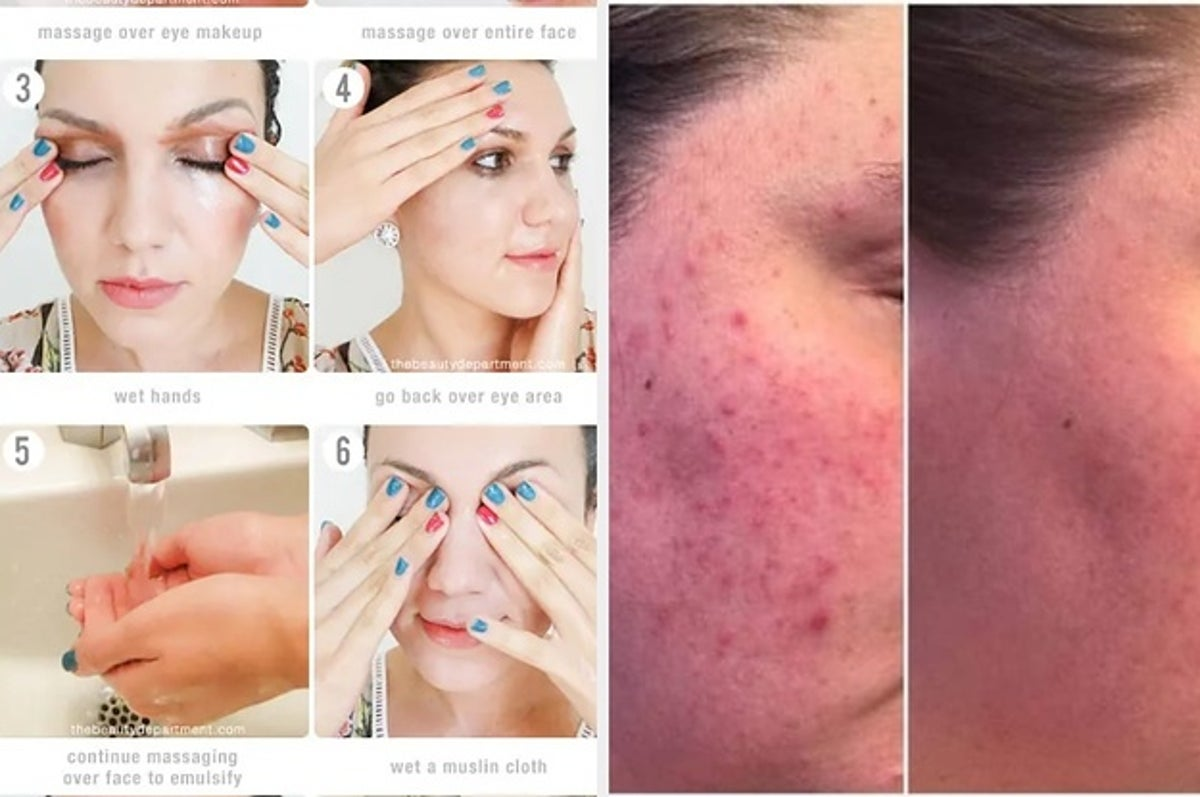23 Ways To Get Clear Skin And Keep It That Way