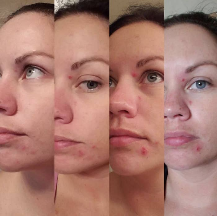 "Promising review: ""I don't know how this works, but it does! I occasionally get a few cystic acne bumps and they tend to stick around for weeks. I used to go to the dermatologist to solve the problem. I heard of this and was hesitant to buy. I ended up buying it and put it on overnight. The next morning the cysts were half the size. I used it again the following night and they are almost completely gone. The jar of product is very small, but a little goes a long way. It also helped to clear up a few other acne spots I had!"" —MickPrice: $24.95"