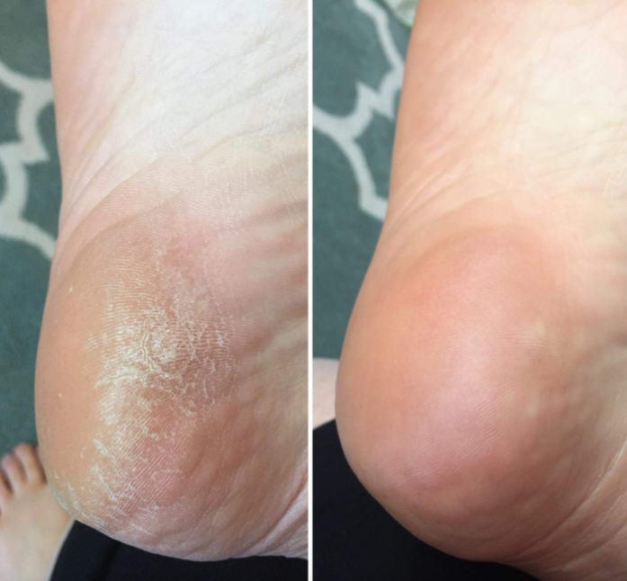 "Promising review: ""This may be my best purchase I've ever made! Seriously. I've tried all of the other foot products and honestly, they didn't do the job. This rasp has transformed my feet in the most amazing ways!!!! I had thick, ugly skin on the bottoms of my feet but after just one use, the results of this file were dramatic! This is worth 10x the price."" —BethzzGet it from $7.29."