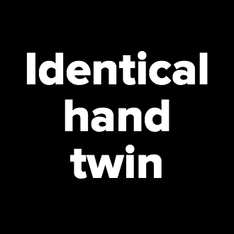Identical<br />hand<br />twin<br />