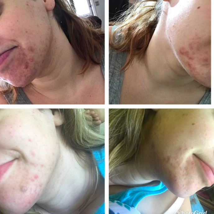 A set of reviewer displays showing someone going from a large crop of breakouts by their mouth to the breakouts looking less inflamed