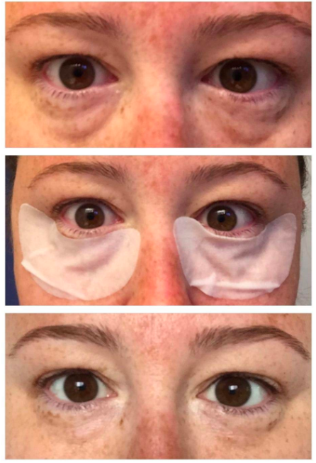 reviewer with puffy eyes, then wearing the masks, then eyes looking better after masks