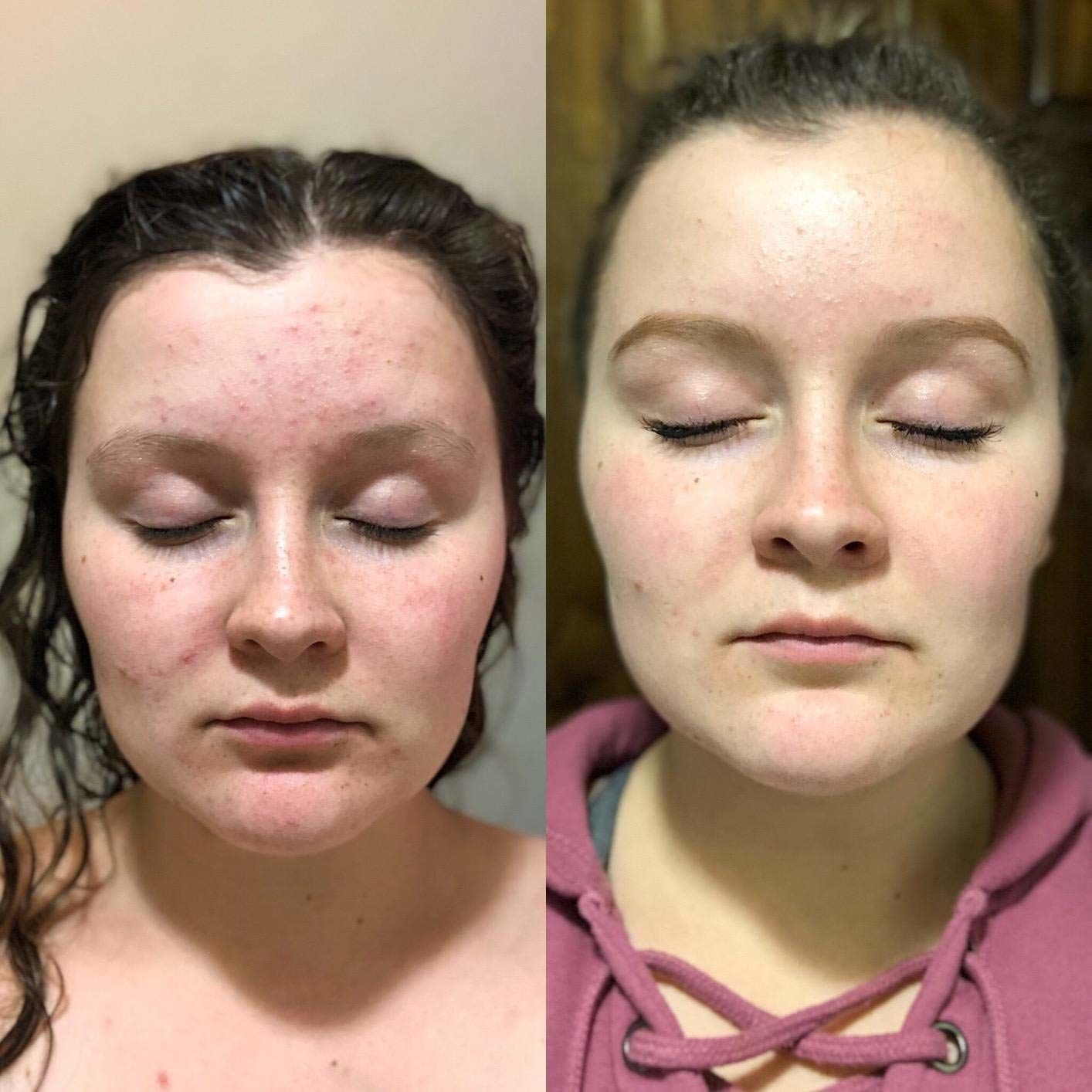 A before/after of a reviewer's face with reduced redness and small acne bumps