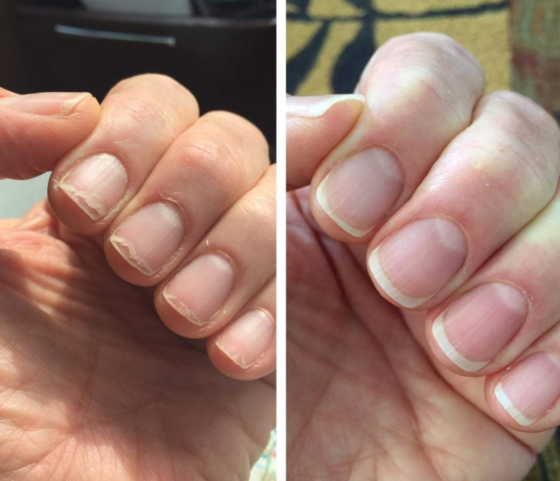 """Just massage this oil into your nails and cuticles every night before going to bed. With daily use, your nails will begin to grow and strengthen (seriously, just read the overwhelmingly positive reviews) and your ripped-up cuticles will begin to heal/not look completely terrible. Promising review: """"HOLY GRAIL PRODUCT. All my life, I've had super weak and brittle nails that would instantly break the second they grew out a tiny bit. This oil has changed EVERYTHING!! I'm shocked. I noticed after about a week of nightly use that my nails are growing (fast) and not breaking."""" —K. BlackGet it from Amazon for $8.50."""