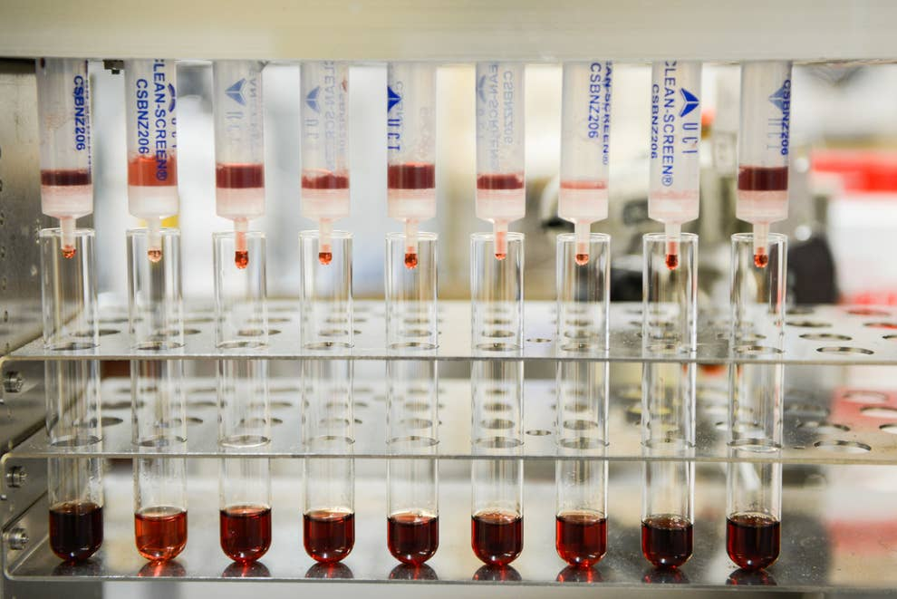 Date Rape Drug Testing Is Totally Unreliable