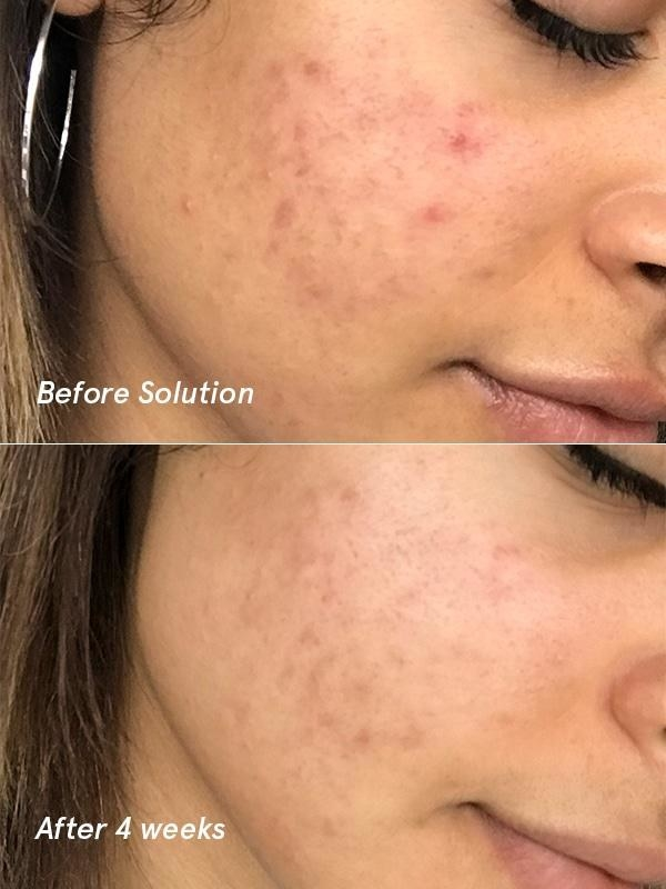 A model's cheek, with active acne before, and faded acne and acne marks after four weeks
