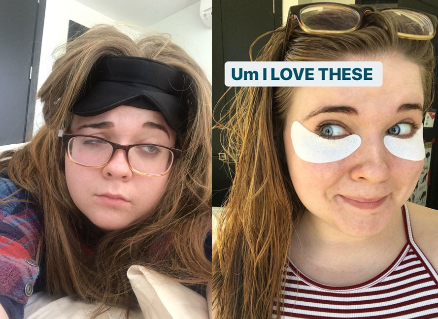 A photo set of a BuzzFeed employee before and after using the firming under-eye gels showing an improvement