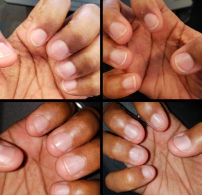 A progression set of photos showing the growth of a reviewer's nails