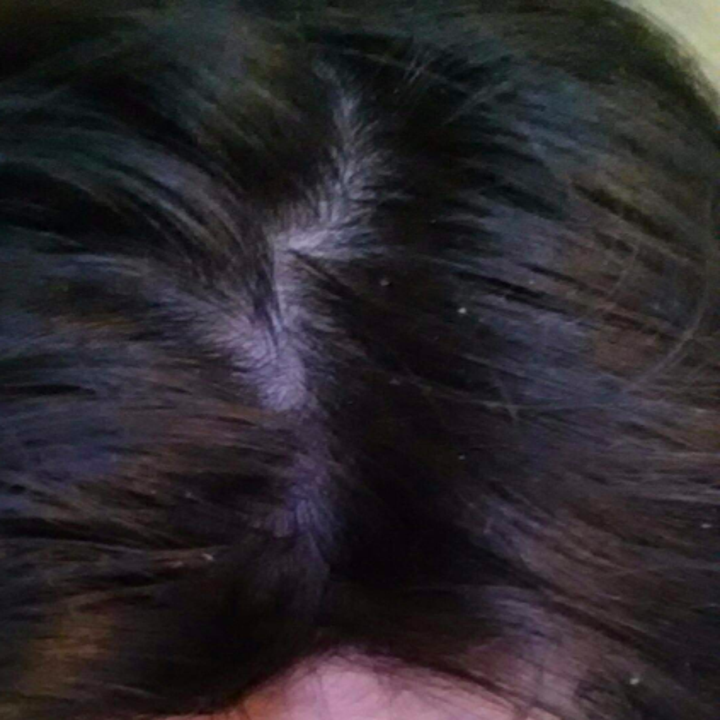 reviewer showing leftover residue and flakes in their hair