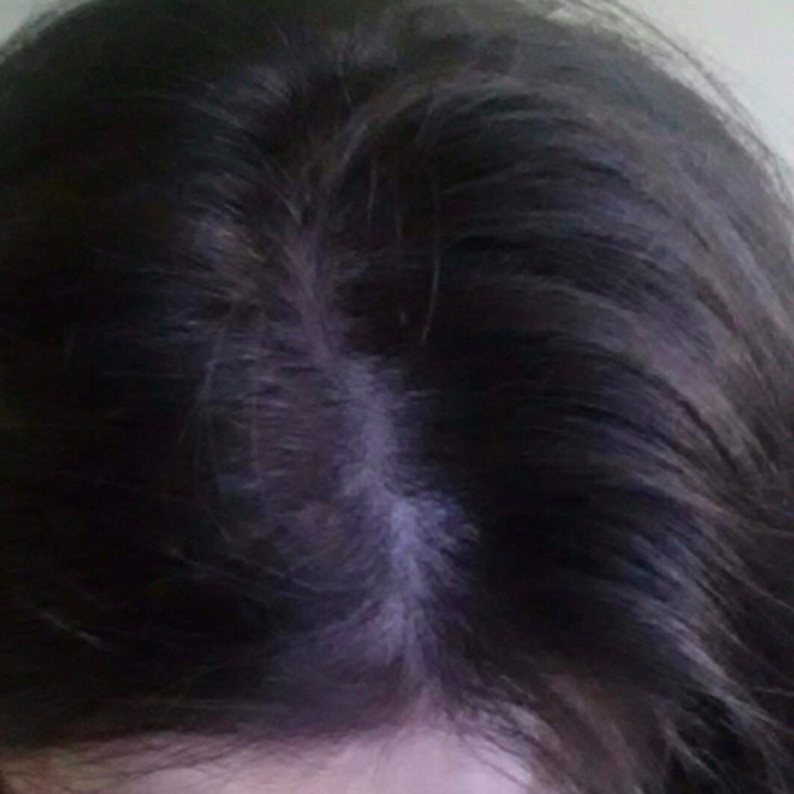 the same reviewer with a flake-free scalp