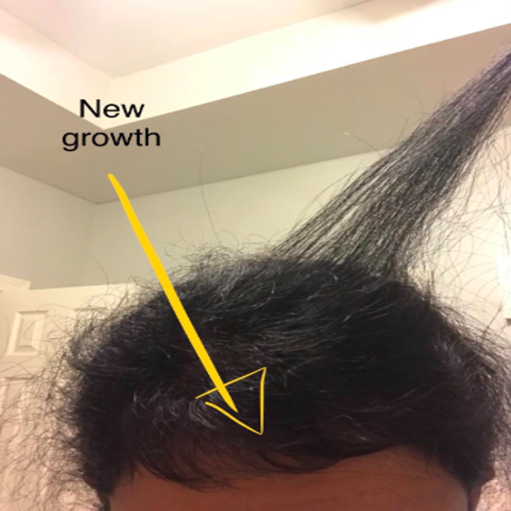 different reviewer showing new hair growth at the front of their head